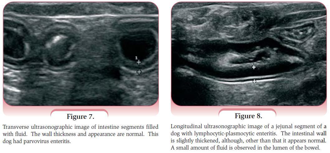 Gastroenteritis Ultrasound